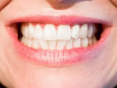 Jak mít bílé zuby i bez bělení?